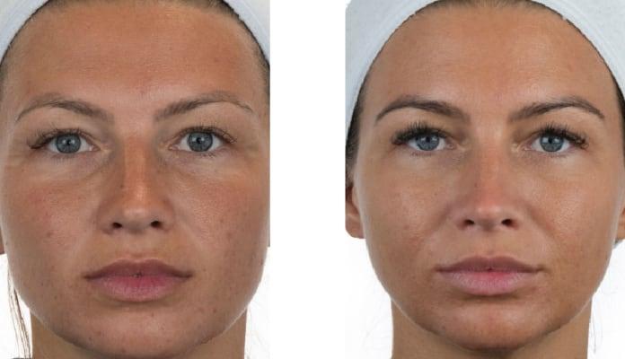 resultados ageloc boost nu skin